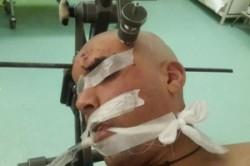 جراحی نادر برای خروج میلگرد یک متری از سر کارگر+عکس
