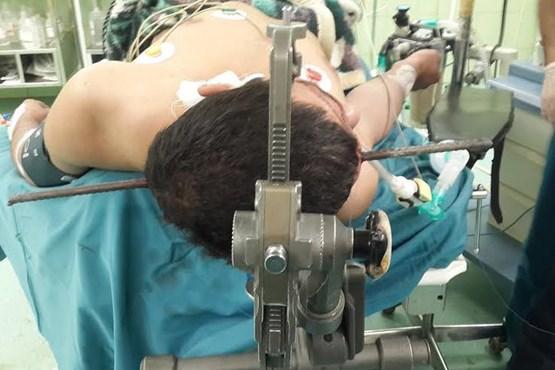 جراحی نادر برای خروج میلگرد یک متری از سر کارگر + عکس