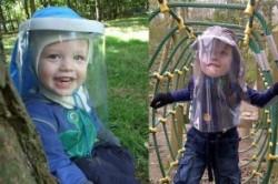 کودکی که از نور خورشید سرطان میگیرد +عکس