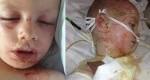 پسری با دردناک ترین بیماری پوستی +عکس