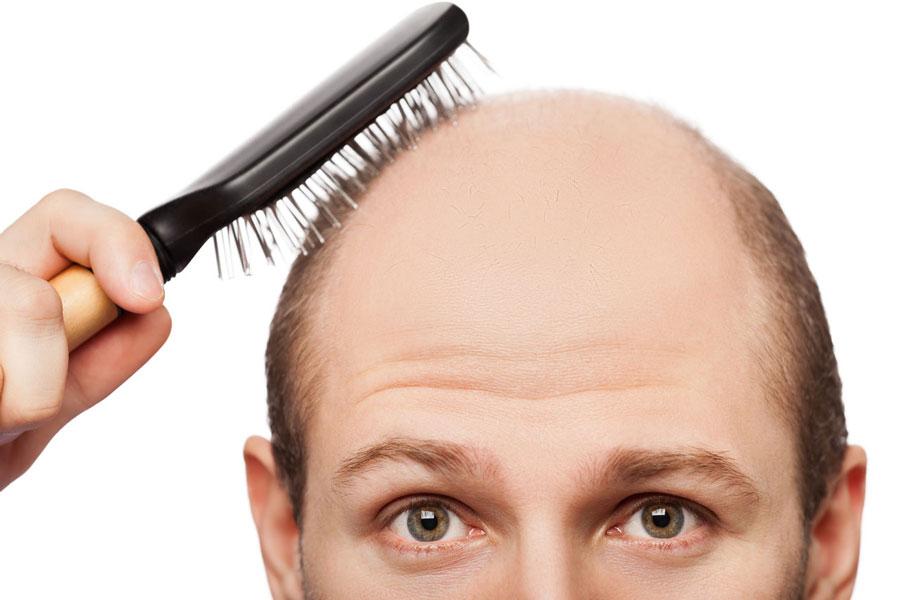 دلایل ریزش مو و درمان آن