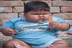 بیماری نادر کودک هندی، پزشکان را بهت زده کرد + عکس