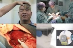 عجیبترین رخدادهای پزشکی در سال 2014+عکس