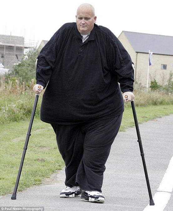 کاهش وزن 300 کیلوگرمی چاق ترین مرد جهان+تصاویر