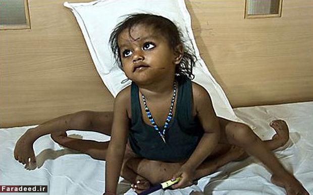 پرستش کودک ناقص الخلقه هندی