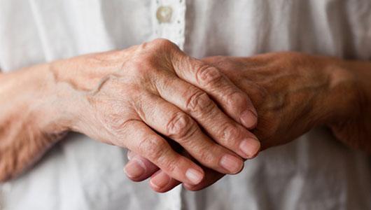 افسردگی آرتروز arthritic-hands
