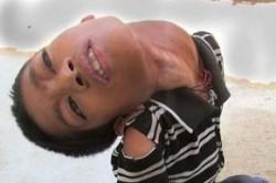 پسری با گردن کج!+عکس