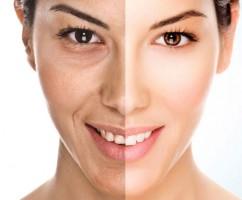 درمان سلولیت پوست