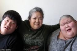 دوقلوهای چینی با ترسناکترین بیماری مغزی + عکس