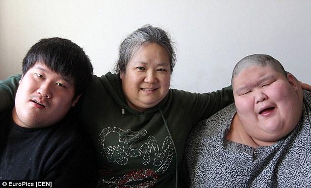 دوقلوهای چینی با ترسناکترین بیماری مغزی