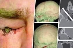 میخ 7.5 سانتیمتری داخل چشم یک باغبان