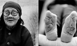 آخرین بازماندگان زنان پا کوچک در چین + عکس