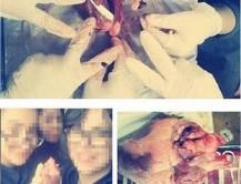 خشم کاربران از سلفی دانشجویان پزشکی با اجساد/عکس+18