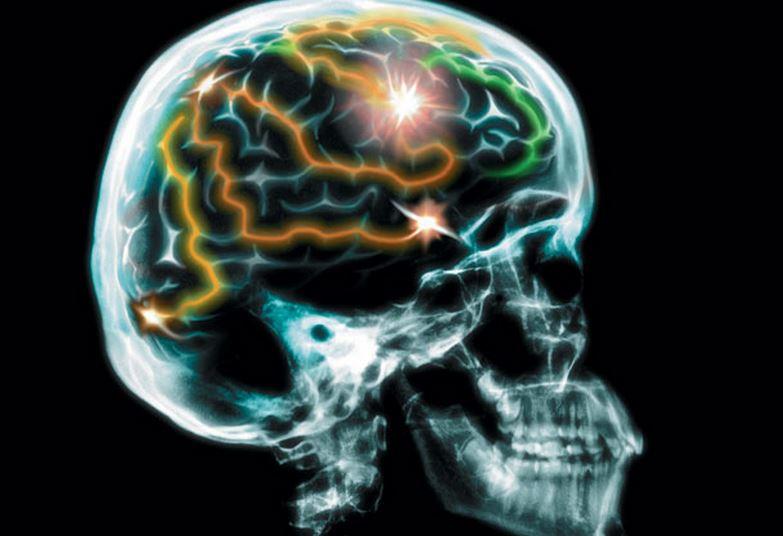 پیشگیری آلزایمر Alzheimers