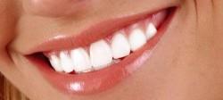 آرایش صورت برای داشتن لبخندی زیباتر