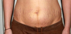 شل شدن پوست شکم scar-marks