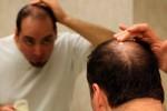 ریزش مو hair-lose