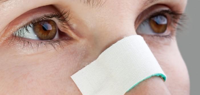 مراقبت پس از جراحی بینی