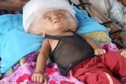 زندگی دختر بچهای که سرش سه برابر اندازه معمول است!+عکس
