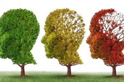 چگونه بفهميم داريم آلزايمر ميگيريم؟