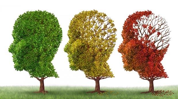 فراموشی Alzheimer