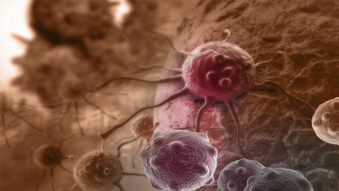 سرطان cancer