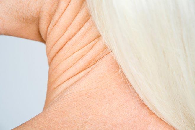 افتادگی پوست گردن saggy-neck