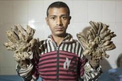 """زندگی سخت جوان بنگلادشی با بیماری نادر """"مرد درختی""""+عکس"""