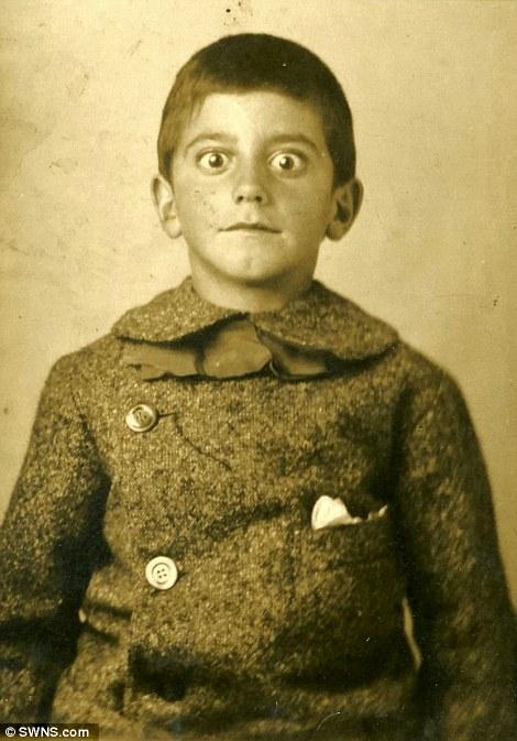 تب سلفی درسال 1910