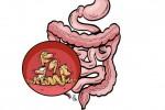 انگل Parasite