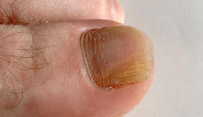 روشهای پیشگیری و درمان قارچ ناخن