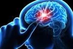 سکته مغزی stroke
