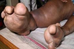 پاهایی هم وزن یک بچه فیل!+عکس