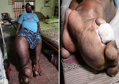 تصاویر/ مریضی عجیب و غریب مرد هندی