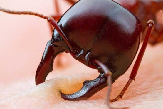 گاز گرفتن مورچه