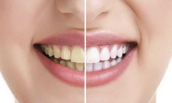 رفع زردی  دندون teeth