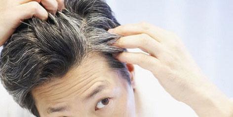 سفیدی مو White_Hair