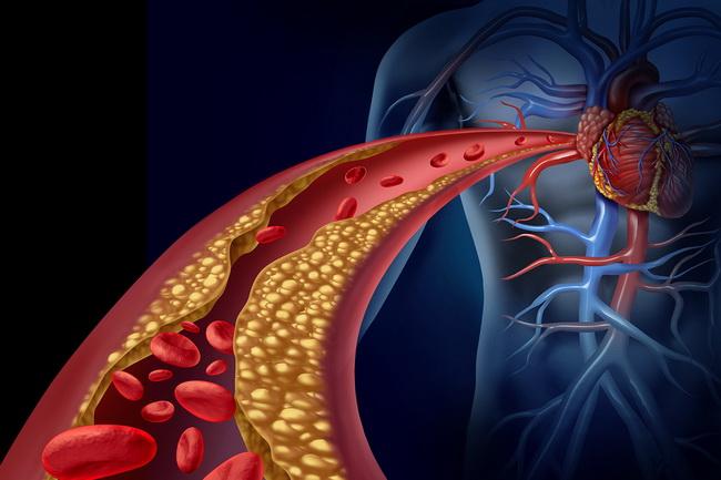 bigstock-Clogged-Artery-61575236.jpg