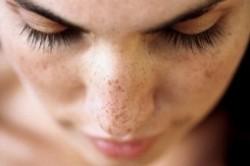 آشنایی با انواع خالها و لکههای پوستی
