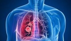 غذاهای خطرناک برای ریه
