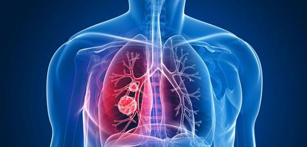 خوراکی های مضر برای سرطان ریه