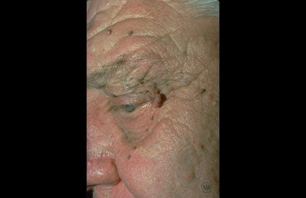 منگولههای پوستی