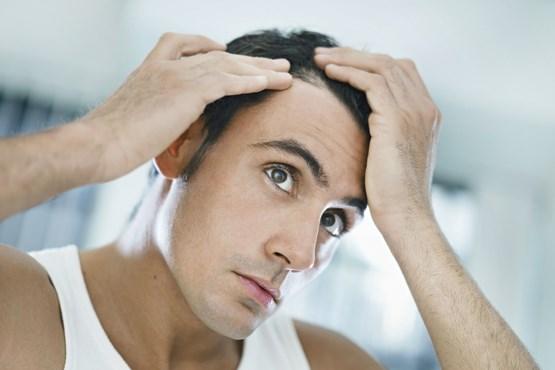 ریزش مو hair