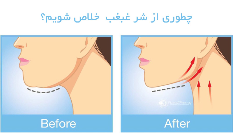 lose-double-chin-درمان غبغب