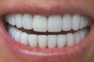 جرم گیری دندان teeth