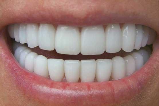 جرم گیری  دندون teeth