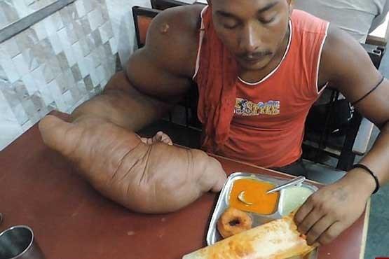 مردی با دستی ۲۰ کیلویی