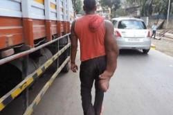 مردی با بازوی 20 کیلویی + عکس