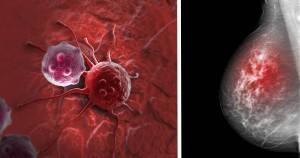 سرطان سینهbreast-cancer-risk