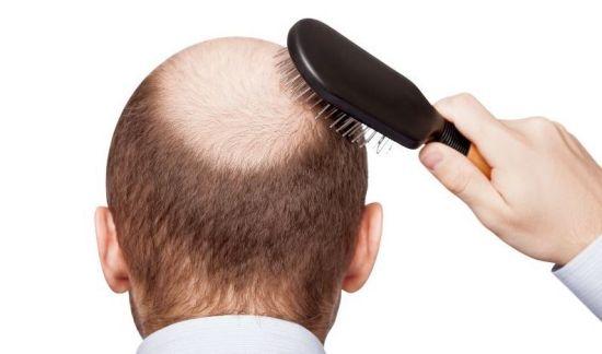 ریزش مو hairloss